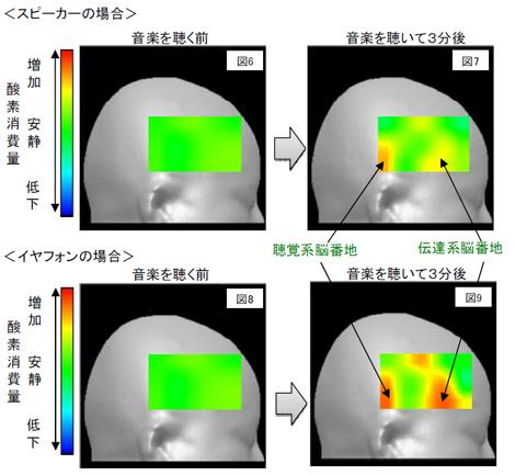 スピーカー(上)とイヤホン(下)で音楽を聴いた際の脳の様子 部位:右半球一次聴覚野を含む側頭葉〜前頭葉後部 酸素消費(D-O)の聴取開始時点(図6・8)と3分後時点(図7・9)