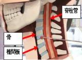 """加齢とともに固くなった椎間板は脊髄管を圧迫。""""つまずき""""を引き起こす原因に…"""