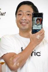 ドクターヘリで運ばれた時の写真を公開した安田大サーカスの団長安田 (C)ORICON NewS inc.