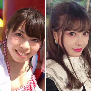 二重整形後(左)、全顔整形後(右)