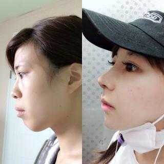 鼻とあごの手術で横顔も激変。