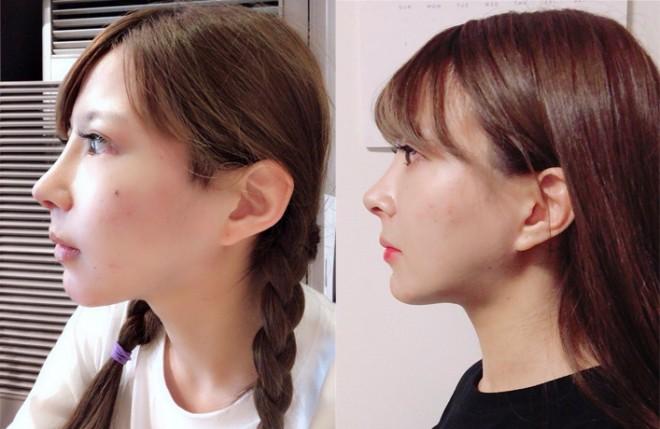 鼻の整形直後(左)、1ヶ月後の様子(右)。「アバターがなくなって非常にイイ感じ」とのこと。