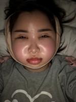 術後のダウンタイム中、顔がパンパンに腫れているいきりちゃん