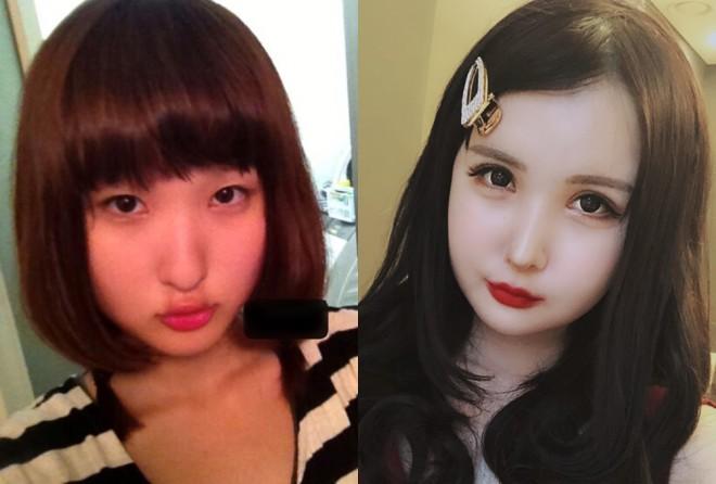 いきりちゃんの(左)整形前15歳、(右)整形後の現在