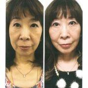 【ビフォーアフター】60歳の体験者「マリオネットラインが目立たなくなった」