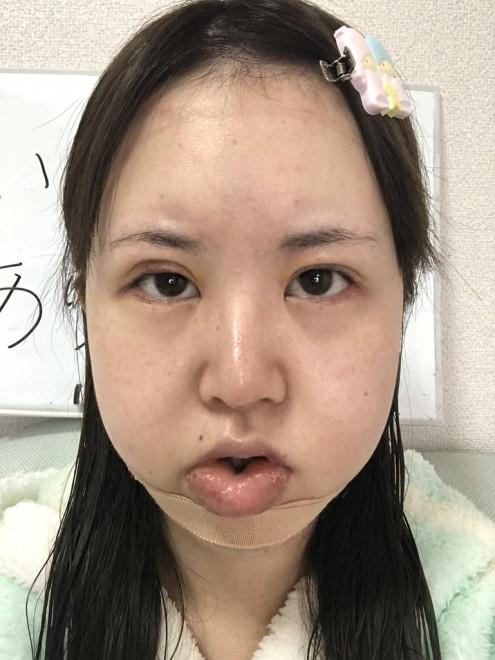術後の写真