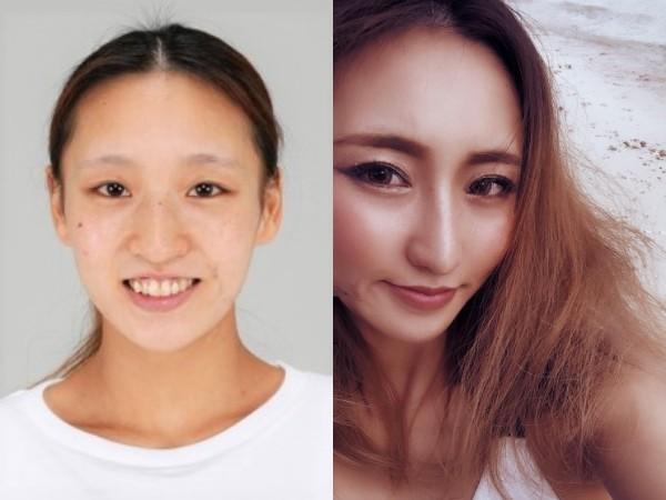 (左)整形前の山田麻莉亜さん(右)整形後の山田麻莉亜さん(写真/本人提供)