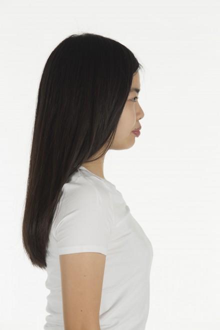 【整形前】笹野千枝里さん/『第1回整形シンデレラオーディション』グランプリ