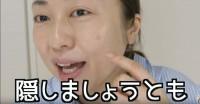 """問題は頬の""""シンボルシミ""""…"""