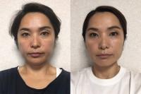 【体験者before(左)→after(右)】たった1週間で明らかな変化。目がスッキリ二重に、口角も上がる(M・Sさん40歳)