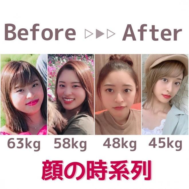 【ダイエットビフォーアフター】半年で18キロの減量に成功したのあさん