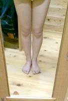 【ダイエットビフォーアフター】15キロの減量に成功した薬膳アドバイザーの詩乃さん