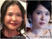 ルフォーSSRO+輪郭形成から術後10ヶ月(左)と現在(右)(画像提供:seinaさん)