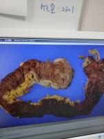 これが、摘出された大腸…!
