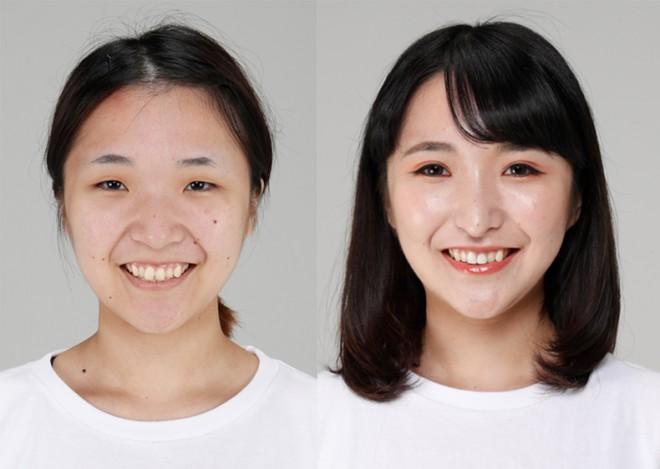 左・整形前のすっぴんの太田さん、右・整形後の太田さん