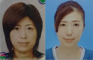 【体験者before(左)→after(右)】フェイスラインがすっきりした53歳のS・Tさん