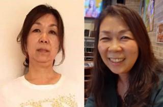 【体験者before(左)→after(右)】毛穴が目立たないキレイな肌になった58歳のN・Mさん