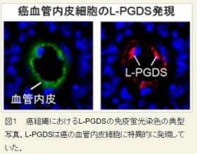 がん細胞への栄養補給を制限する物質、東大が発見 新たな治療法の開発にも