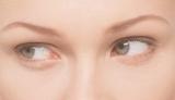 目元のエイジングサインは目の形やクセによって現われ方が異なるとか