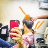 円形脱毛症を明かしたGACKT(アメブロオフィシャルブログより)