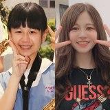 小学生のころ容姿をからかわれたことで整形を考えた山田麗さん(左)整形前、(右)整形後