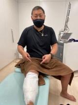 タトゥーの除去を始めた清原和博氏